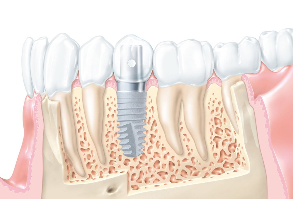 Dentist in Thamesmead